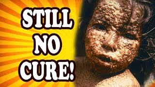 Top 10 Baffling Diseases We Still Don't Have Cures For — TopTenzNet