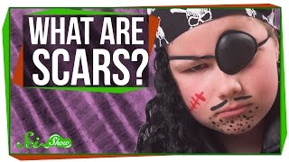 What are Scars?