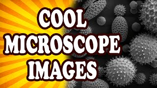 Top 10 Mundane Things That Look Awesome Under a Microscope