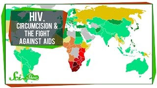 HIV, Circumcision & The Fight Against AIDS