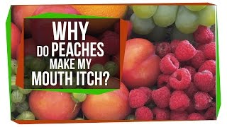 Why Do Peaches Make My Mouth Itch?