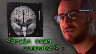 Brain Scanner - Computerphile