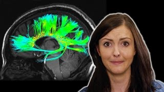 4 Odd Things We've Seen in Your Brain