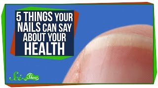 5 Things Your Nails Can Say About Your Health