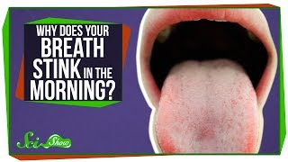 Why Does Your Breath Stink in the Morning?